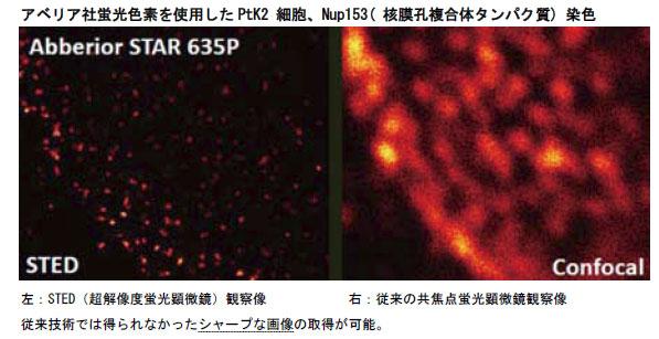 アベリア社蛍光色素を使用したPtK2 細胞、Nup153( 核膜孔複合体タンパク質) 染色