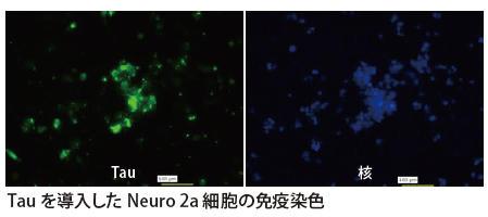Tau を導入したNeuro 2a 細胞の免疫染色