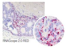 RNAscope®-PTEN: リンパ腫でのシグナリングパスウェイ調節