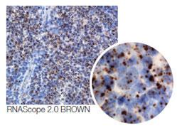 RNAscope®-EGFR: 乳癌組織での成長因子レセプター