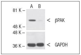 β PAK siRNA(h) (品番:sc-36181) をトランスフェクトした細胞をウェスタンブロッティングで解析