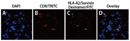 メラノーマにおけるSurvivin 特異的細胞傷害性T 細胞の免疫組織染色