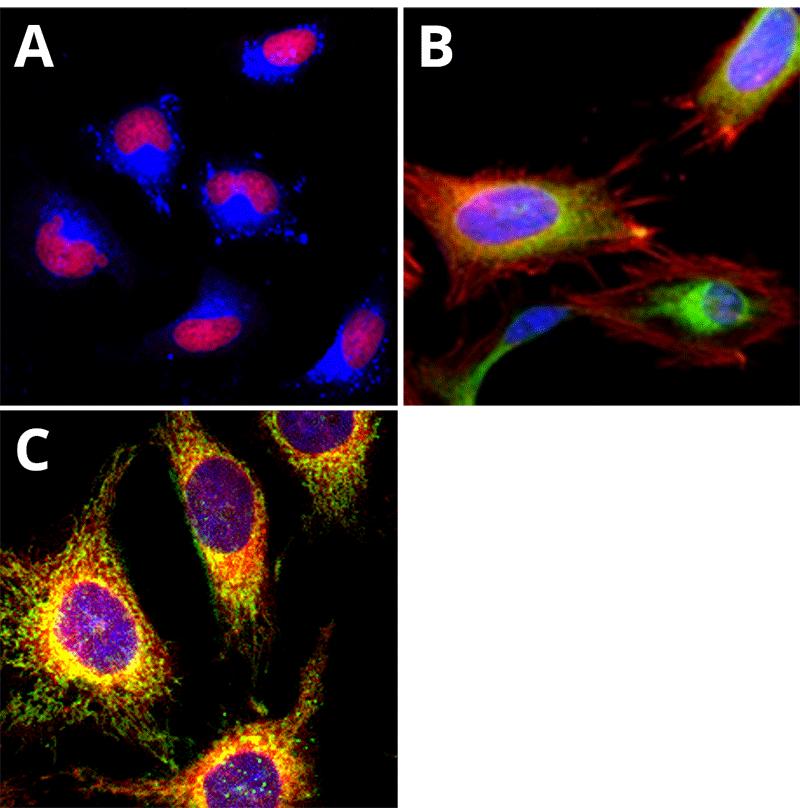ER Tracer™ dyeで可視化したHeLa細胞のER