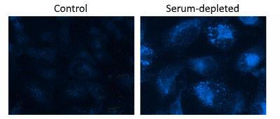 HeLa細胞に飢餓状態を誘導させた Autophagy Blue™ 標識液胞