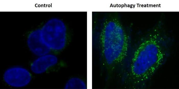 HeLa細胞に飢餓状態を誘導させた Autophagy Green™ 標識小胞