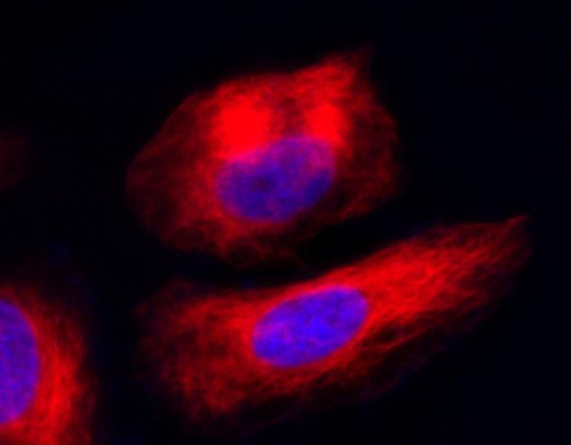 HeLa生細胞のチューブリンのイメージング