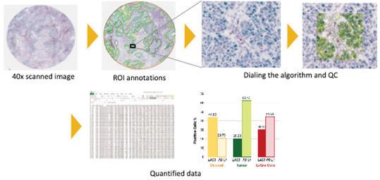 HALO Imaging Analysisを用いた、定量的な発現解析
