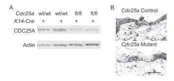 Cdc25a変異上皮においてCDC25Aタンパク質が低減