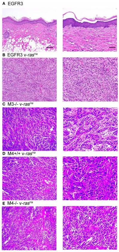 非形質転換不死化角化細胞の同所性皮膚移植と上皮産生