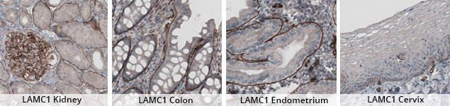 抗LAMC1抗体を用いたIHC染色