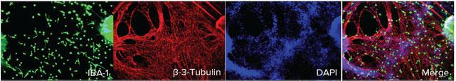 神経細胞との共培養