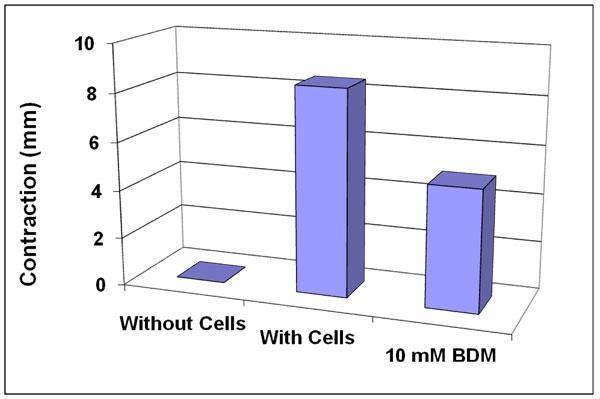 BDMによる細胞収縮阻害