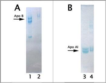 図3 精製リポタンパク質の SDS-PAGE ゲル
