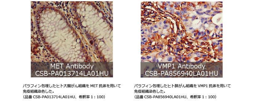 オートファジー研究抗体IHC
