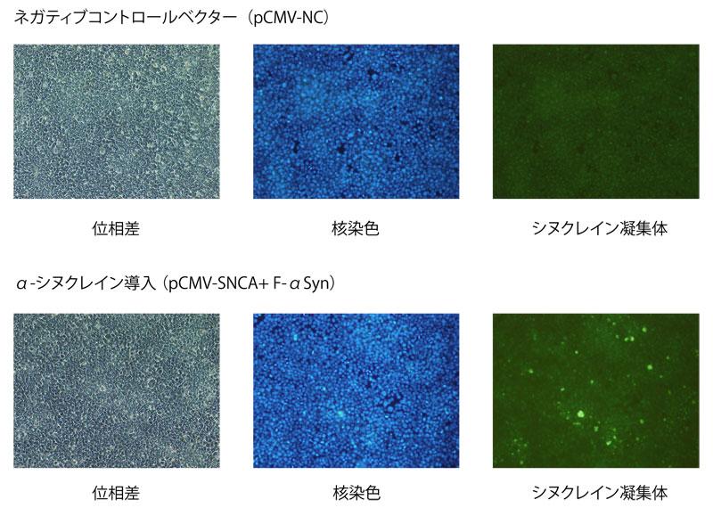 アミロイド構造蛍光染色キットを用いた検出