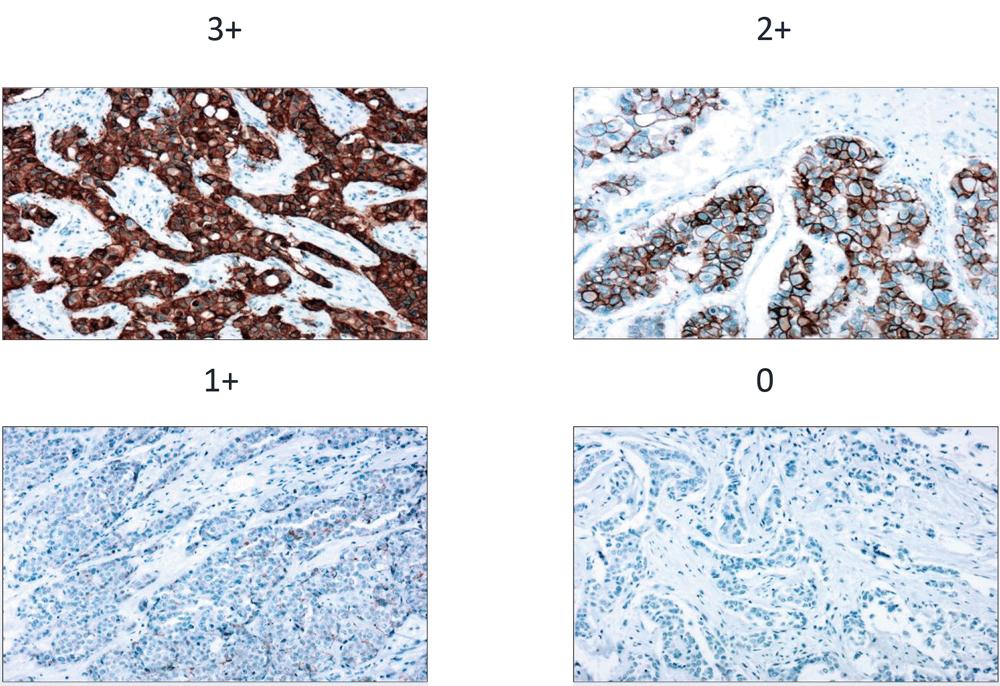 HER2抗体(クローン EP3、品番:RMAB049)を使用した、各スコアのヒト乳がん組織の染色