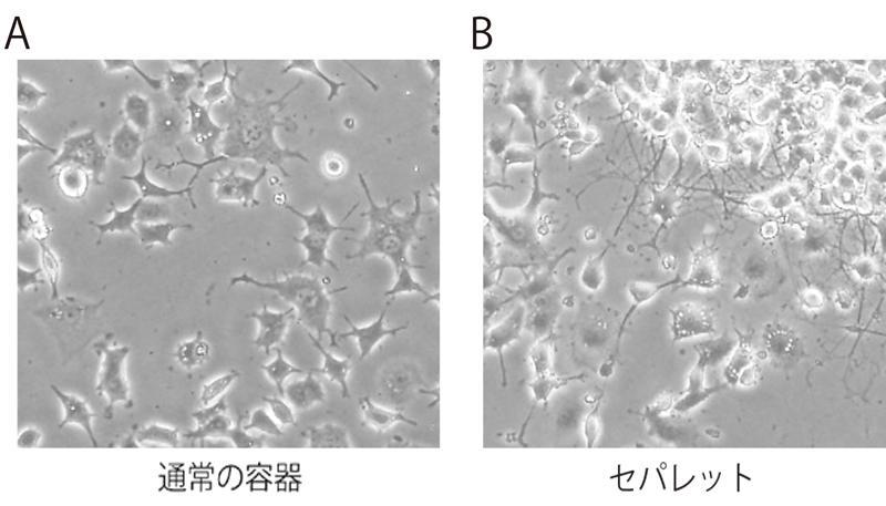 ラット副腎褐色細胞腫(PC-12)の継代