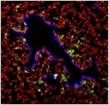 EGFP陽性細胞が、がん幹細胞。 血管内皮細胞は青色を呈する細胞