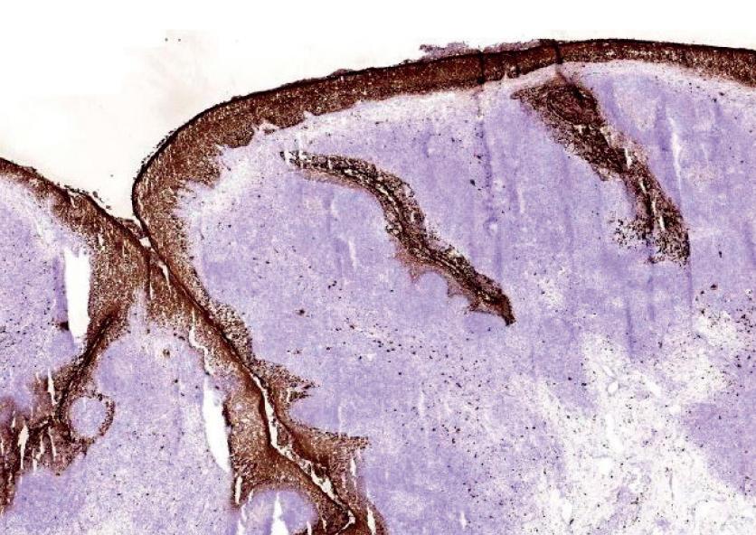 カルプロテクチン抗体(品番:HM2156)を用いた扁桃腺扁平上皮の凍結切片の免疫組織染色(希釈 1:100)