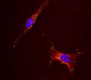 DyRect(TM) Live-Cell中性脂質イメージング