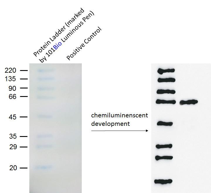 分子量ラダーのバンド位置を101 Bio社のLuminous Penで記入後、X線フィルムを用いて化学発光により検出