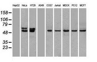TrueMAB抗体ウェスタンブロット解析