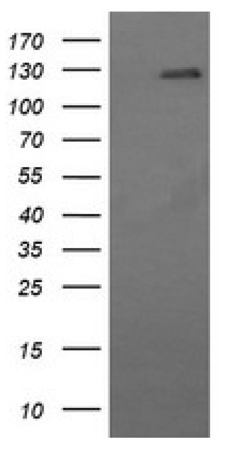 CD163抗体を用いたイムノブロッティング