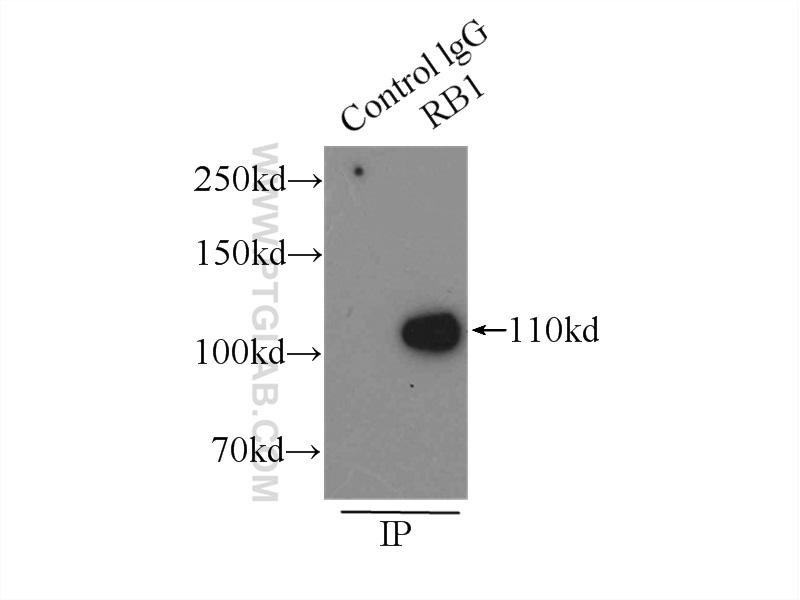 IP Result of anti-RB1 (IP:10048-2-Ig, 3ug; Detection:10048-2-Ig 1:500) with  A431 cells lysate 3000ug.