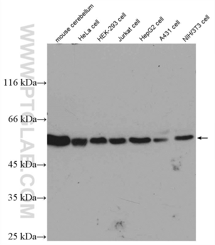 Various lysates were subjected to SDS PAGE followed by western blot with 10068-1-AP (beta Tubulin antibody) at dilution of 1:1000  incubated at room temperature for 1.5 hours