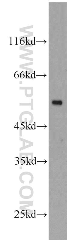 HeLa cells were subjected to SDS PAGE followed by western blot with 10094-1-AP(tubulin-beta antibody) at dilution of 1:1000  incubated at room temperature for 1.5 hours