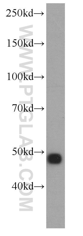human brain tissue were subjected to SDS PAGE followed by western blot with 10149-1-AP(ENO2 antibody) at dilution of 1:400  incubated at room temperature for 1.5 hours