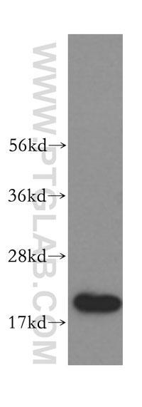 HEK-293細胞をSDS-PAGE後、本抗体(希釈倍率 1:300)を用いてウェスタンブロットを行った。
