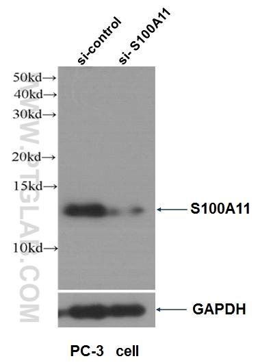 WB result of S100A11 antibody (10237-1-AP, 1:4000) with si-control and si-S100A11 transfected PC-3 cells.