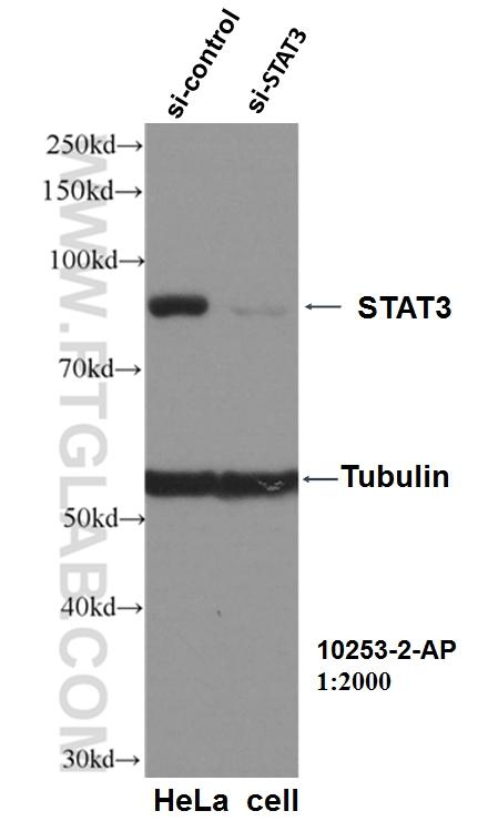WB result of STAT3 antibody (10253-2-AP, 1:2000) with si-control and si-STAT3 transfected HeLa cells.