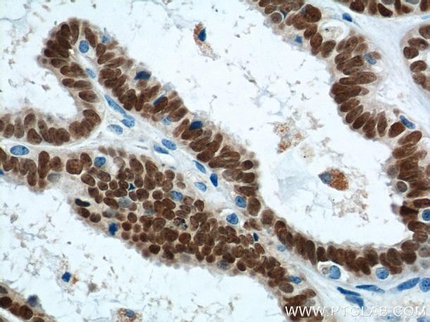 本抗体(希釈倍率 1:1,200)を用いた、ヒト卵巣癌(パラフィン包埋切片)の免疫組織化学染色(40X)。