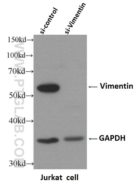 WB result of Vimentin antibody (10366-1-AP, 1:4000) with si-Control and si-Vimentin transfected Jurkat cells.