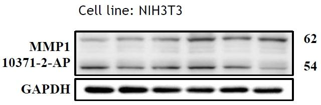 WB results of MMP1 antibody (10371-1-AP, 1:500) with NIH3T3 cells, 62 kDa for pro-MMP1 and 54 kDa for Active MMP1. Data from Dr. Hui-Wen Chiu, Taipei Medical University.
