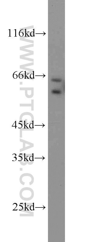 A549 cells were subjected to SDS PAGE followed by western blot with 10371-2-AP(MMP1 antibody) at dilution of 1:1000  incubated at room temperature for 1.5 hours