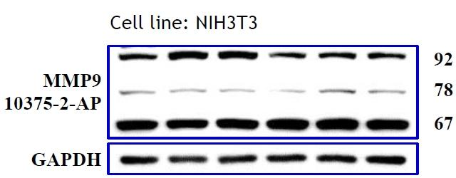 WB results of MMP9 antibody (10375-2-AP, 1:500) with NIH3T3 cells, 92 kDa for pro-MMP9 and 78-82 kDa and 67 kDa for Active MMP9. Data from Dr. Hui-Wen Chiu, Taipei Medical University.