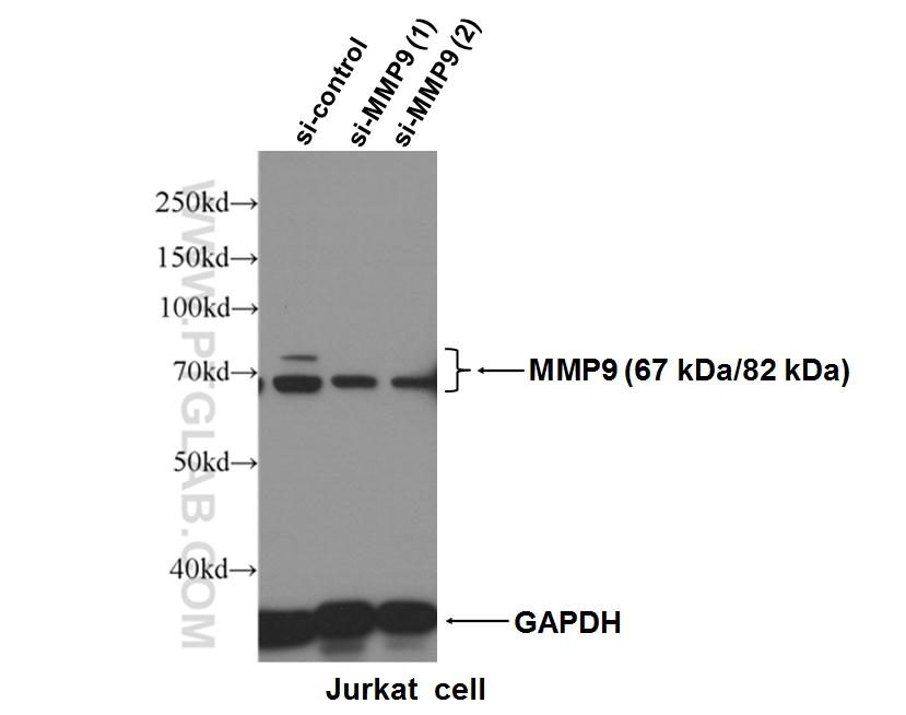 WB result of MMP9 antibody (10375-2-AP, 1:600) with si-control and si-MMP9 transfected Jurkat cells.