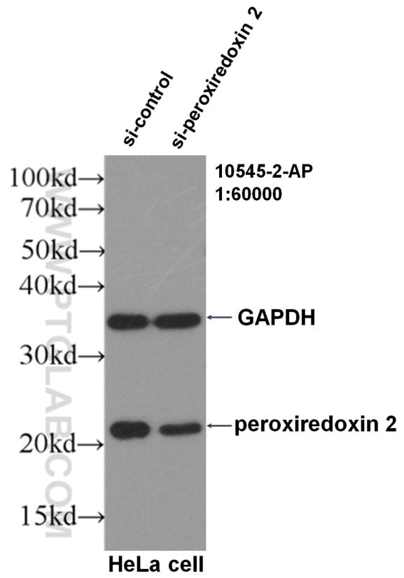 WB result of peroxiredoxin 2 antibody (10545-2-AP, 1:60,000) with si-Control and si-peroxiredoxin 2 transfected HeLa cells.