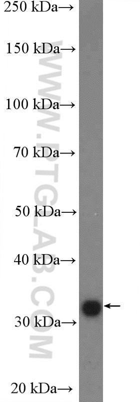 mouse liver tissue were subjected to SDS PAGE followed by western blot with 10626-1-AP( FBXO44 Antibody) at dilution of 1:1000  incubated at room temperature for 1.5 hours