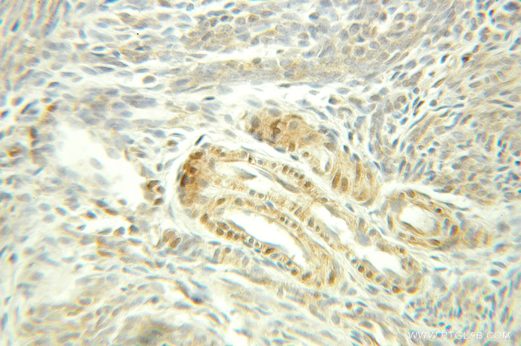 Immunohistochemical of  paraffin-embedded human ovary tumor using 10654-1-AP(HSPA8 antibody) at dilution of 1:100 (under 25x lens)