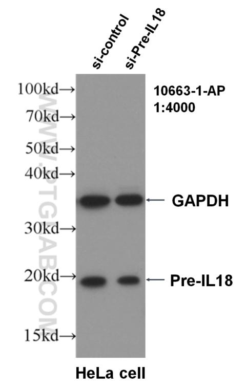 WB result of Pre-IL18 antibody (10663-1-AP, 1:4000) with si-Control and si-Pre-IL18 transfected HeLa cells.