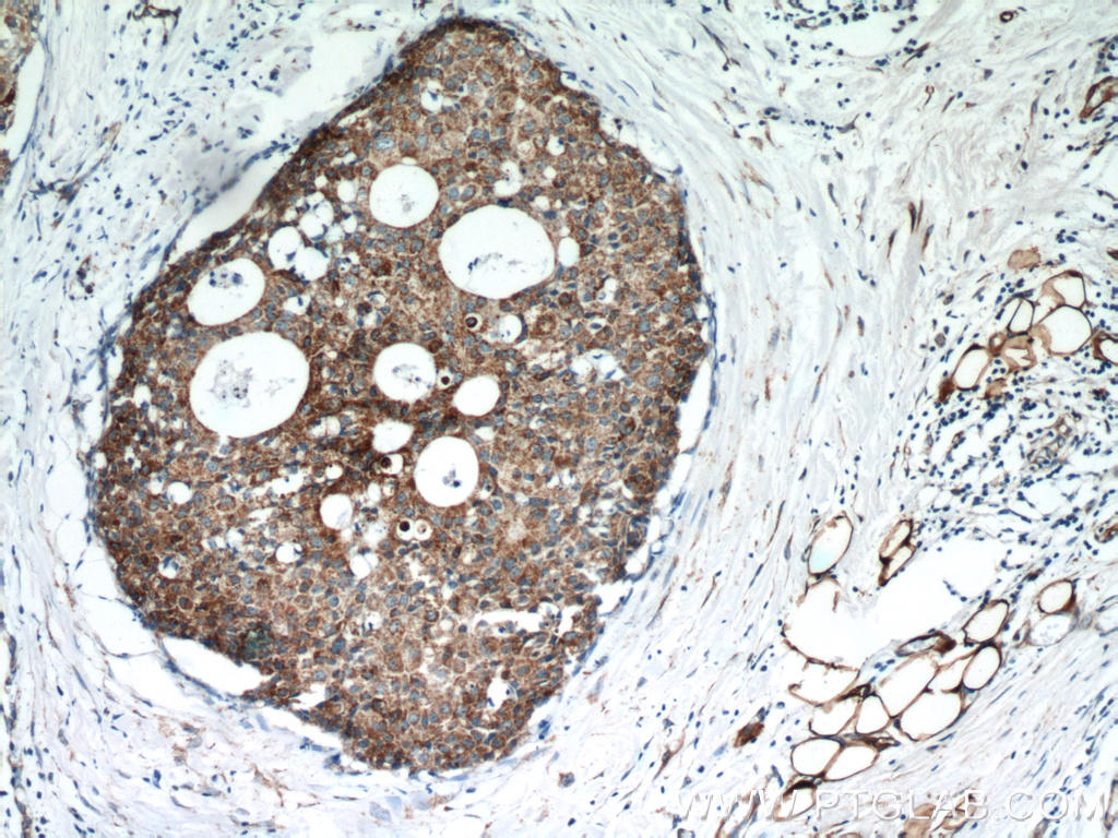 Immunohistochemical of  paraffin-embedded human breast cancer using 10676-1-AP(FABP3 antibody) at dilution of 1:50 (under 10x lens)
