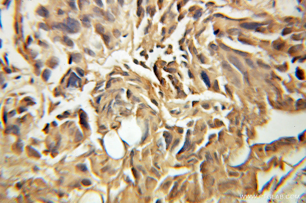 Immunohistochemical of  paraffin-embedded human prostate cancer using 10696-1-AP(FBXO7 antibody) at dilution of 1:100 (under 10x lens)
