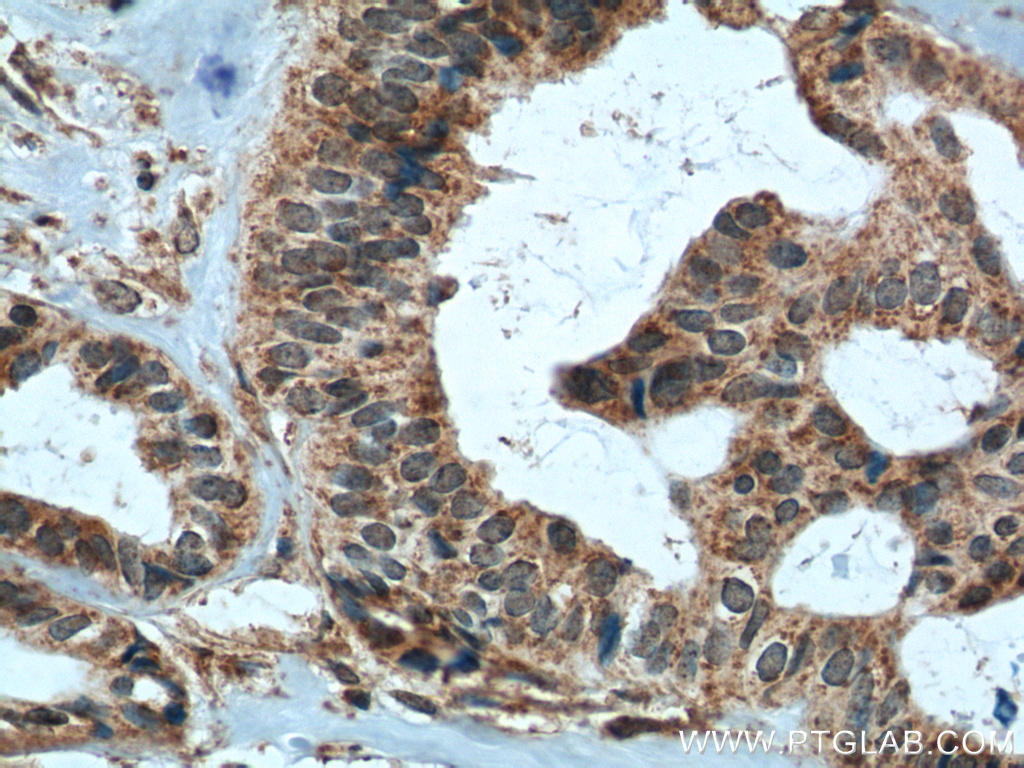 Immunohistochemistry of paraffin-embedded human breast cancer tissue slide using 10753-1-AP( TIMP1 Antibody) at dilution of 1:200 (under 40x lens). heat mediated antigen retrieved with Tris-EDTA buffer(pH9).