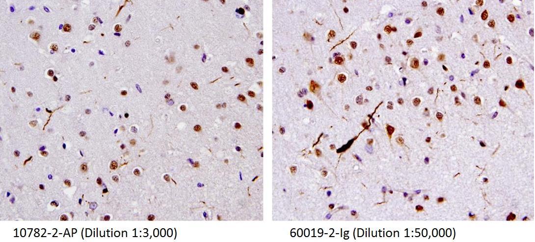 TDP-43抗体(品番:10782-2-AP、品番:60019-2-Ig)を用いた、FTLD-U症例(パラフィン包埋切片)の免疫組織化学染色(40X)。ジストロフィー性神経変性突起(dystrophic neurites)が見られる。(Figs were provided by Linda K. Kwong)