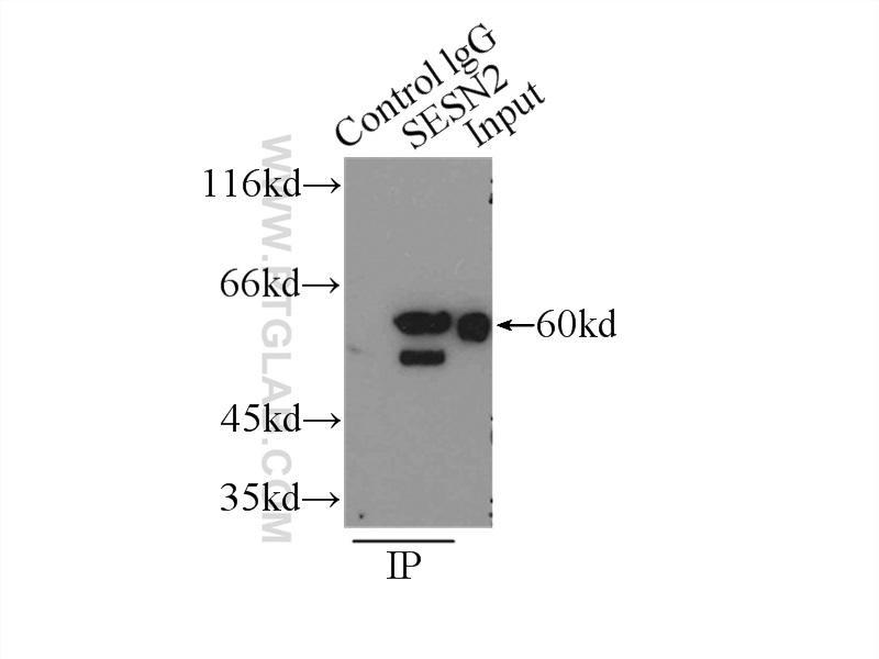 IP Result of anti-Sestrin2 (IP:10795-1-AP, 3ug; Detection:10795-1-AP 1:1000) with  K-562 cells lysate 4000ug.