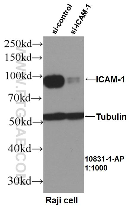 WB result of ICAM1 antibody (10831-1-AP, 1:1000) with si-Control and si-ICAM1 transfected Raji cells.